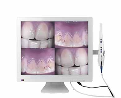 CAMARA INTRAORAL CLINICA MODELO M-998-A MONITOR LED