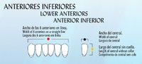 DIENTES NEWCRYL SECTOR ANTEROINFERIOR